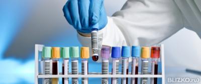 Антиспермальные антитела латексной агглютинации